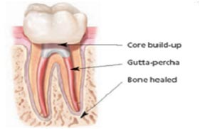 Build-Up-and-Crowns