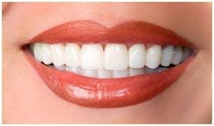 Full-Mouth-Rejuvenation